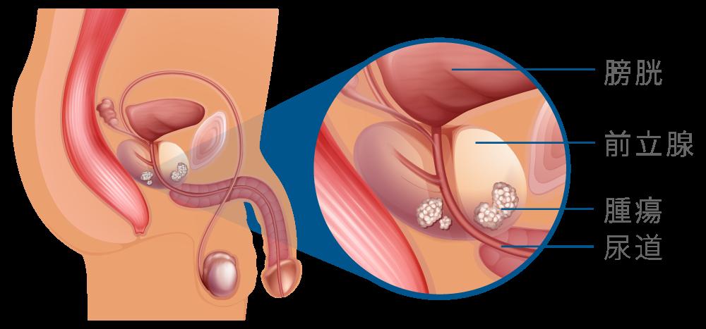 前立腺がん検査 | 板橋区徳丸の泌尿器科・内科医|板橋徳丸泌尿器科